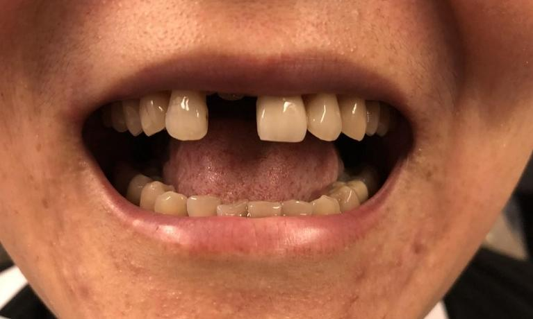 Dental-Implants-Before-Image